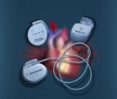 02_07_077_en HEART FAILURE - Pacemakers, why and how